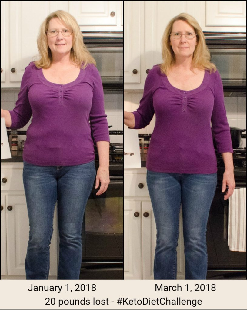 Woman before and after losing 20 pounds.